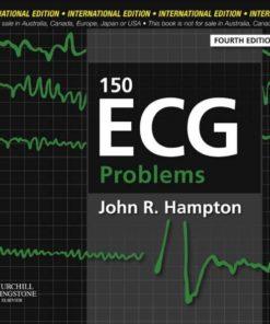 150 ECG Problems sách y